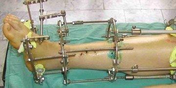 Ученые из Томска усовершенствовали аппарат Илизарова