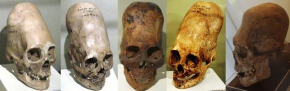 Russian origin of Peruvian elongated skulls?. 62259.jpeg