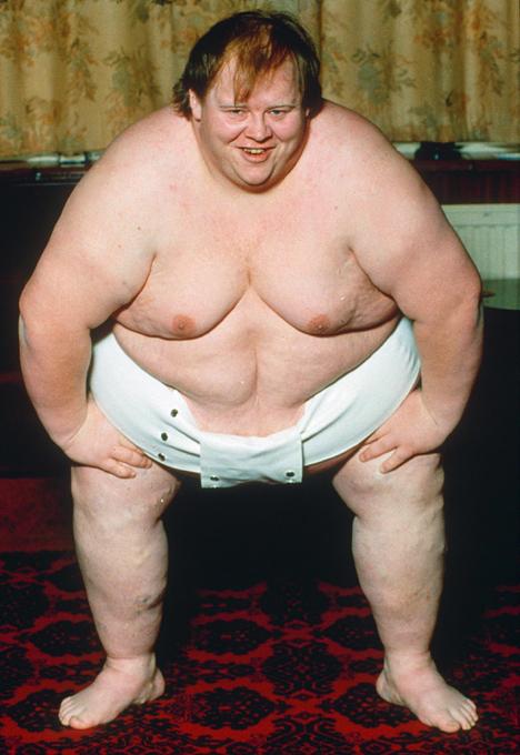 Толстяк - это не смешно