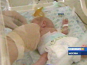 Russian doctors save Thumbelina's life