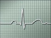 Heart attack incidence falls in men and grows in women