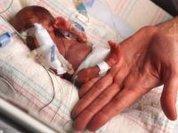 1 in 15 premature babies die