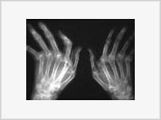 Cracking knuckles without pain causes no harm to joints