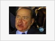 Berlusconi attack: Why did the wounds change sides?