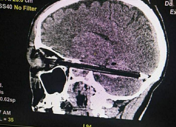 Prison inmate who pierced his brain with a pen, dies at hospital