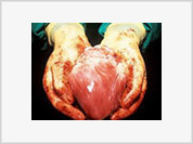 Harvesting organs from dead bodies considered immoral, although it is essential