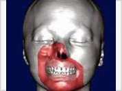 World's first-ever face transplantation operation marked successful