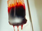 208 patients may have been infected with HIV through donor blood in Russia's Voronezh