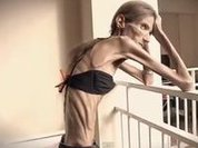 World's most anorexic woman dreams of motherhood