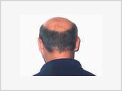 Gene discovered by Russian scientists may help cure baldness