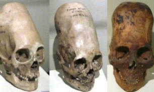 Russian origin of Peruvian elongated skulls?