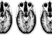 Study says fasting may help protect brain