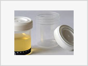 Urine therapy: Drinking urine requires great skills and caution