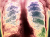 Tuberculosis appeared on Earth three million years ago