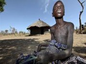 Mysterious child disease in Uganda