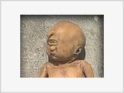 Baby Cyclops born in India