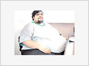 Unemployed man makes the state pay for his weight-reduce operation