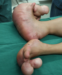 Hobbit boy with giant feet to receive surgery