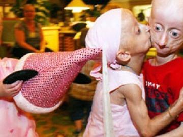 Какие болезни самые странные и страшные? Фото