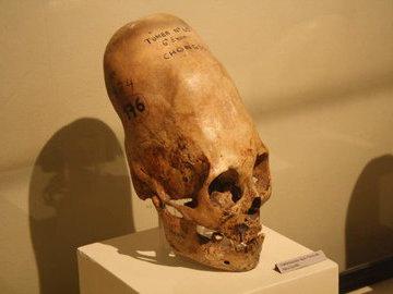 Можно ли определить инопланетный череп?