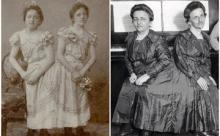 Истории сиамских близнецов, которые закончились хеппи эндом