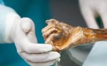 Этци: о чем поведала древнейшая мумия Европы