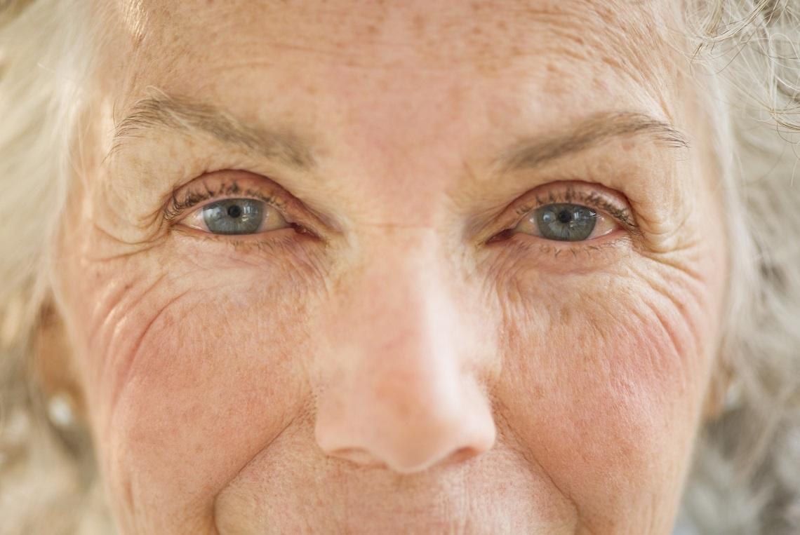 Испанские ученые обнаружили причину старения кожи