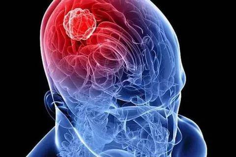 Головная боль у матери двоих детей из Америки оказалась опухолью мозга