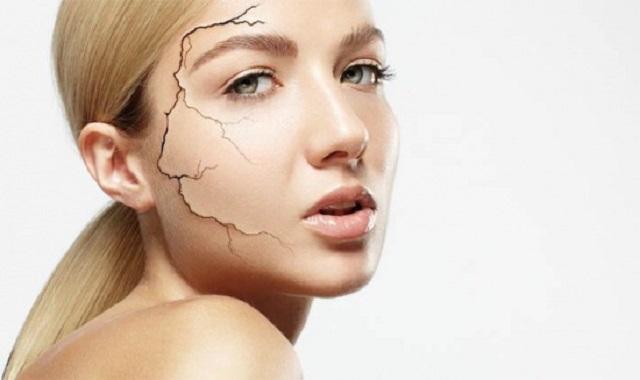 Сухая кожа: Особенности ухода и табу