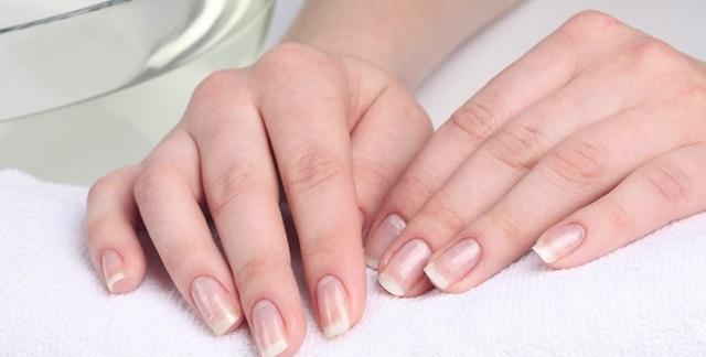 Ногти без белых пятнышек