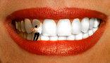 Как удивить окружающих белизной зубов? Советы, видео