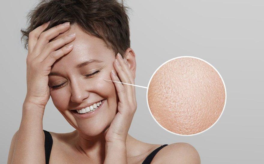 Три решения проблемы жирной кожи