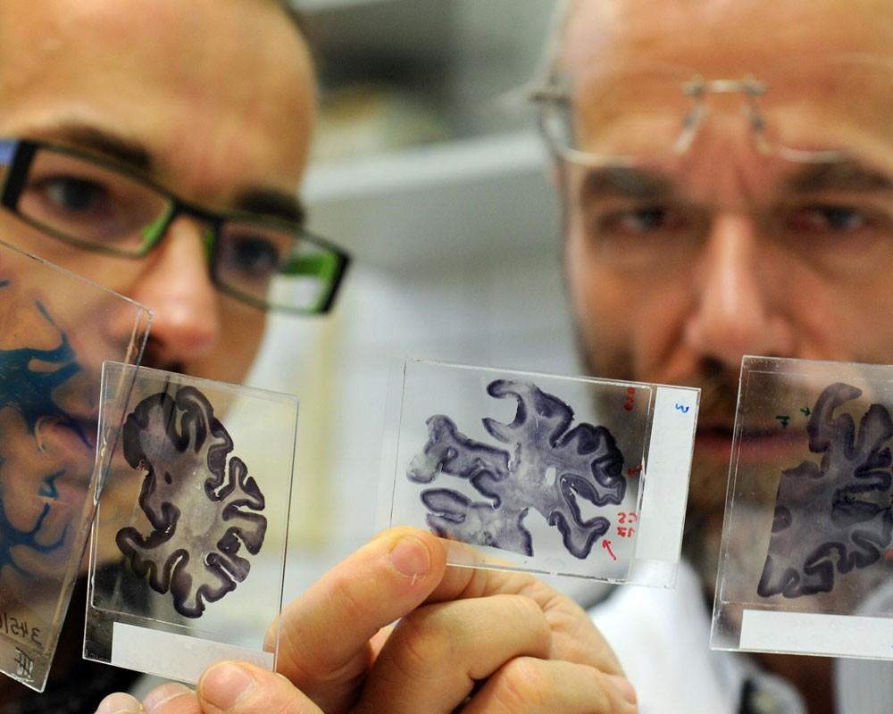 Болезнь Альцгеймера ближе, чем вы думали