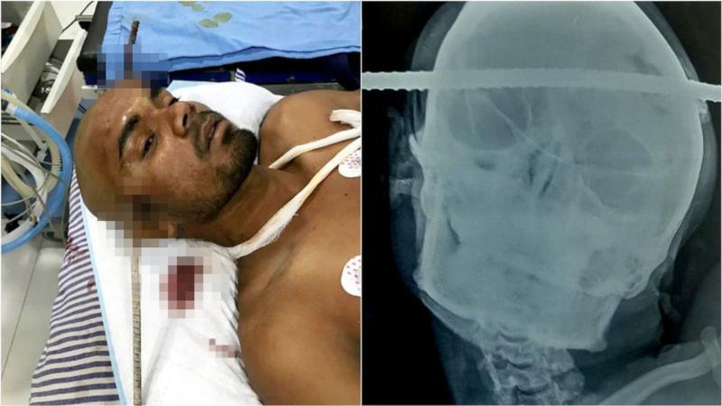 В Индии врачи спасли рабочего, голову которого пронзил стальной прут
