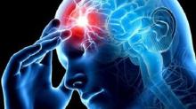 Пять признаков скорого инсульта
