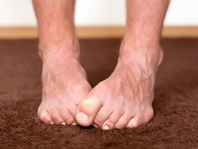 О каких проблемах со здоровьем могут рассказать ноги