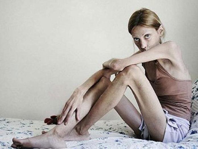 Как понять, что вы больны анорексией