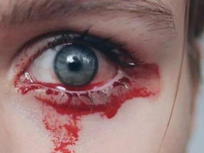 Врачей поразил молодой человек, заплакавший кровью