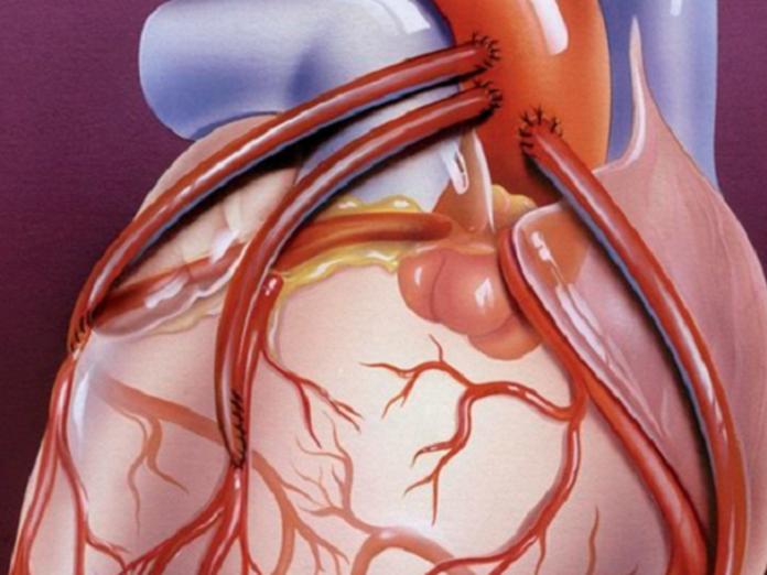 Открытия, положившие конец сердечным приступам. Часть 2