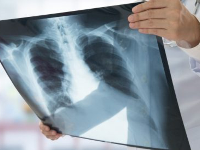 Заболевания легких повышают риск деменции