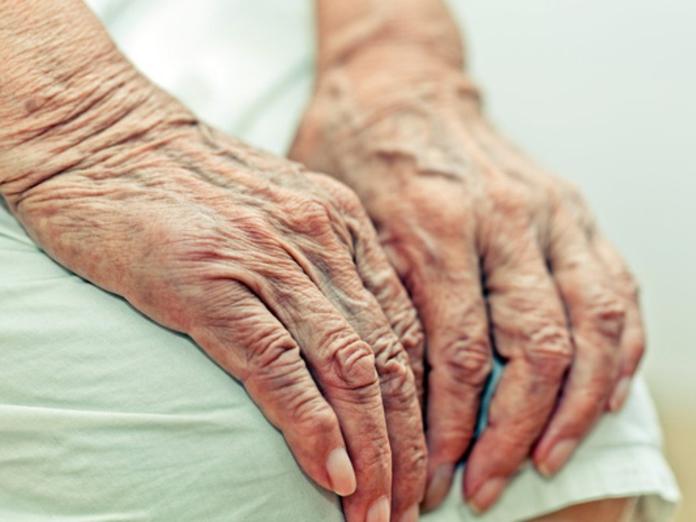 Как предотвратить быстрое старение кожи рук