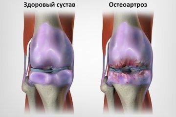 Ожирение часто становится причиной развития остеоартроза