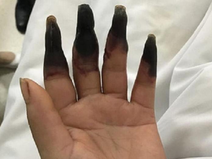 В Китае у женщины после уборки началась гангрена