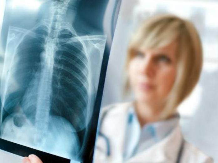 Иммунотерапия способна трансформировать рак лёгких
