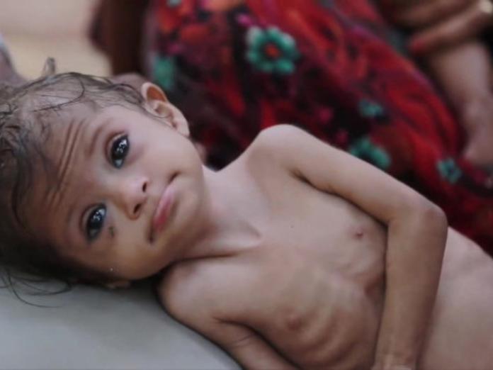 В Австралии родители-веганы чуть на заморили ребенка голодом