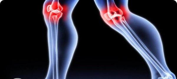 Лечение народными средствами коленных суставов