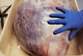 Врачи достали из тела женщины опухоль весом в 20 кг