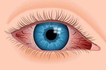 """Какие """"бьюти""""-хитрости приводят к заболеваниям глаз"""
