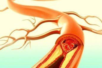 Тромбы чаще возникают у онкобольных