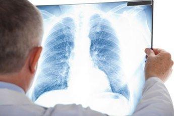 Болезни легких как новый фактор риска развития слабоумия